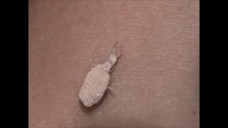 حشرة أسد النمل Antlion